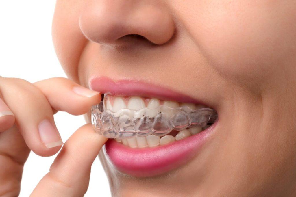 """ד""""ר רוני ז'יץ: מיישר שיניים בשיטת אינויזליין"""