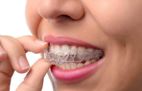 """""""בגיל 30+ הגשמתי חלום"""": האנשים שבאמצע החיים החליטו ליישר שיניים"""