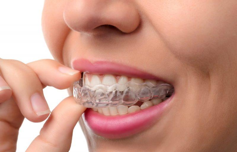"""מהפכת יישור השיניים: """"מהיר מיישור עם טבעות, שקוף, מתאים לכולם"""""""